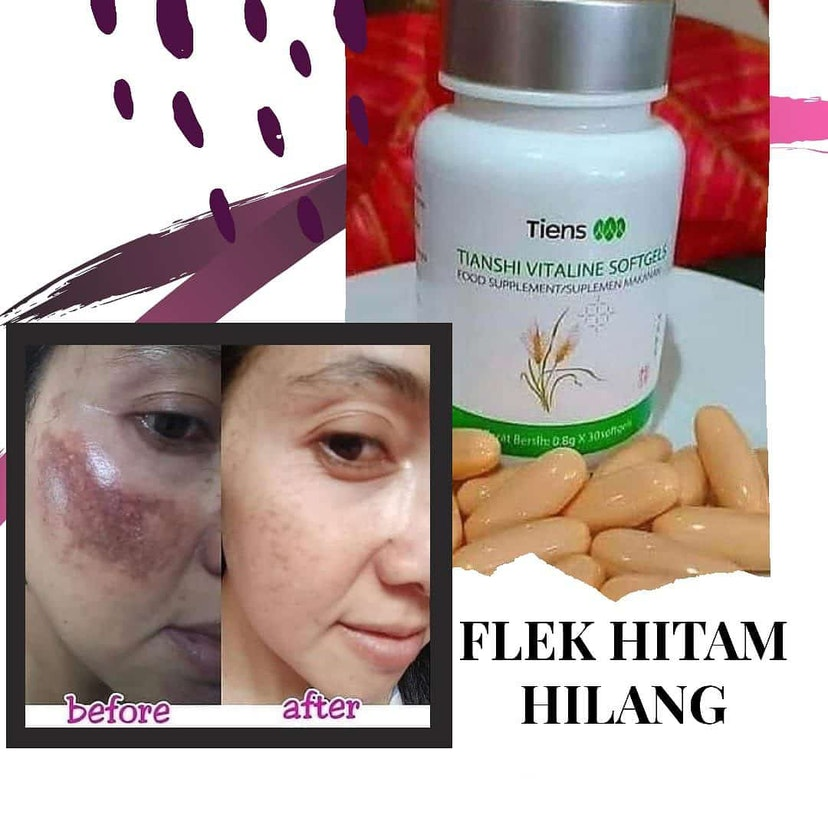 Review Product Vitaline Sofgels
